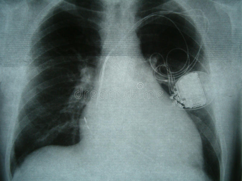 Radiograph, chest, heart pacemaker. X-ray image of the breast. X-ray image of the breast. Enlarged heart with dilated cardiomyopathy. With implanted pacemaker royalty free stock photography