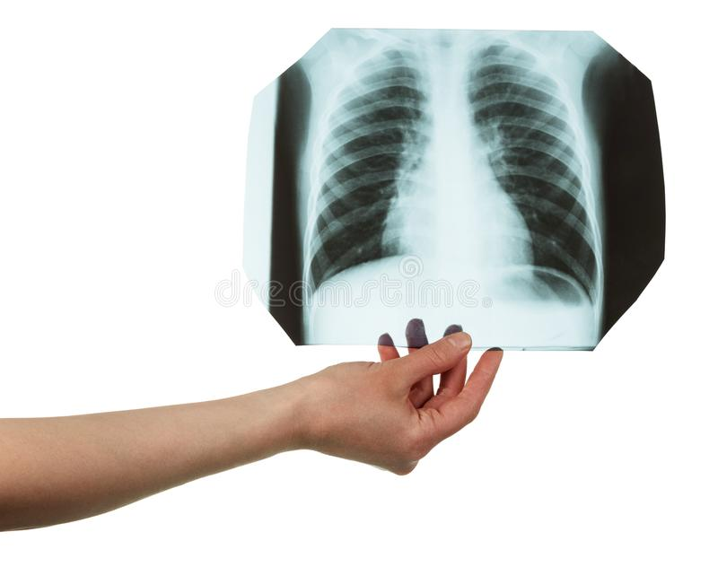 Radiograph of a lung in a female hand on white stock images
