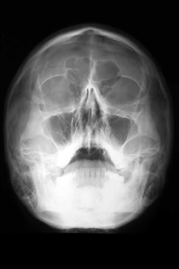 Download Radiographic View Of The Skull (head Radiologram) Stock Image - Image: 22480711