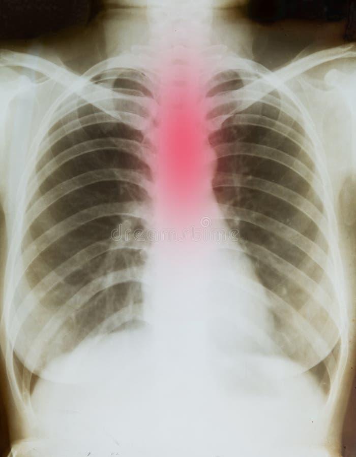 Radiographie de corps photo libre de droits