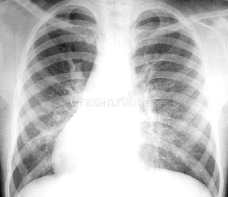Radiographie de la poitrine image stock