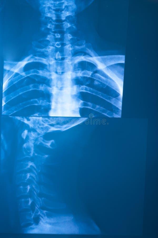 Radiographie de rayon X image libre de droits