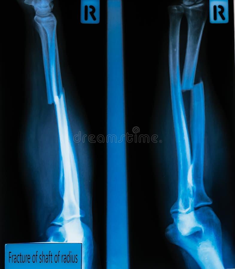 Radiographiez l'axe de fracture d'image du rayon et l'os ulnaire pour un medica photographie stock
