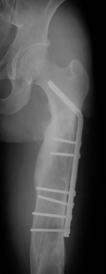 Radiographiez l'image de la fracture de fémur, vue latérale, photos libres de droits