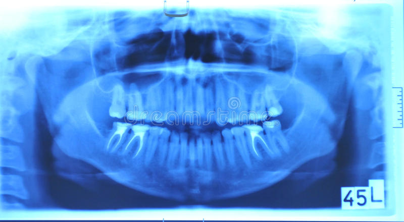 Download Radiography stock image. Image of teeth, hospital, dentist - 16937985