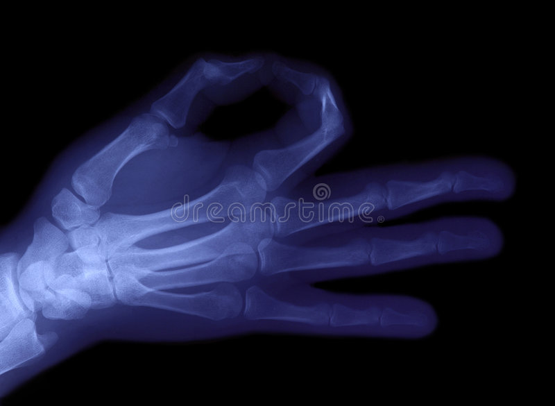 Download Radiography Of Hand Royalty Free Stock Images - Image: 6770229