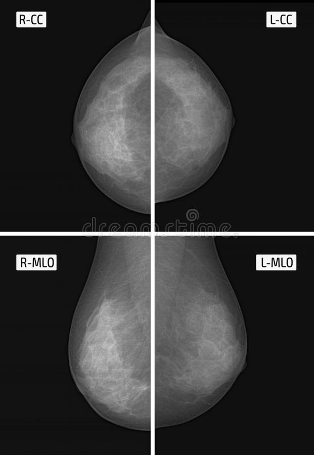 X-ray picture Mammography. Small calcinates. Сancer. vector illustration