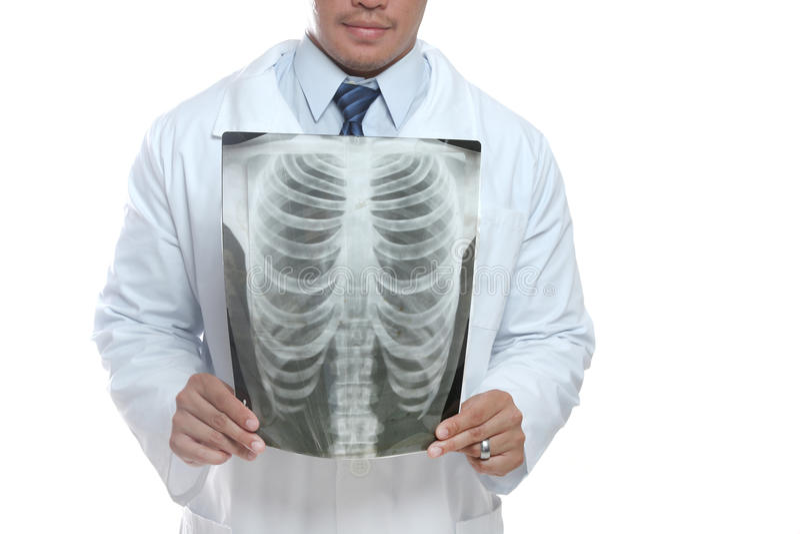 radiología imagen de archivo libre de regalías
