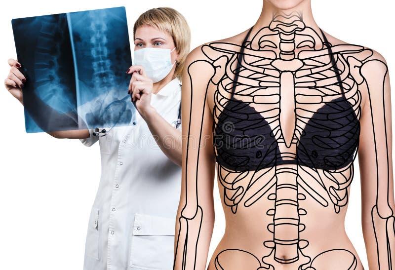 Radiologefrau, die Röntgenstrahl nahe Patienten überprüft stockfotografie