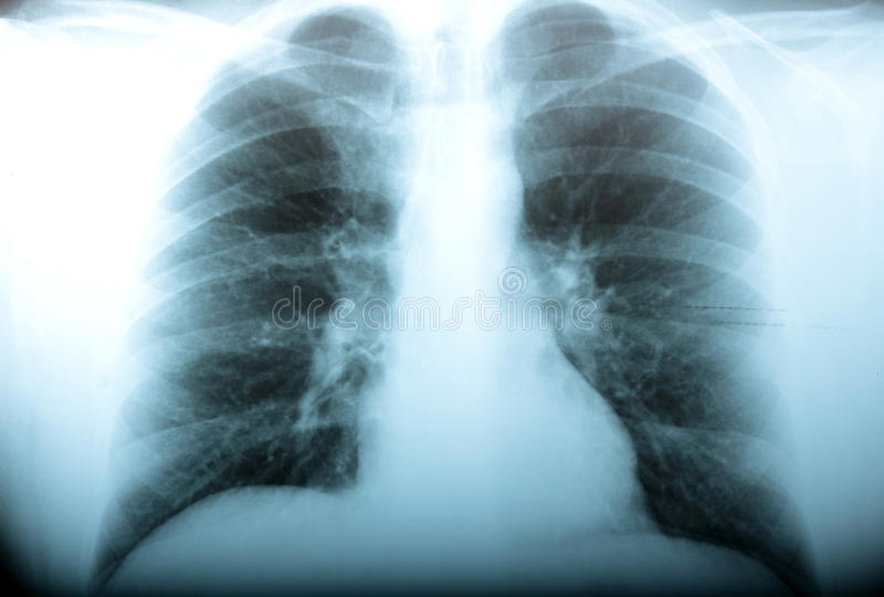 radiologi arkivbild