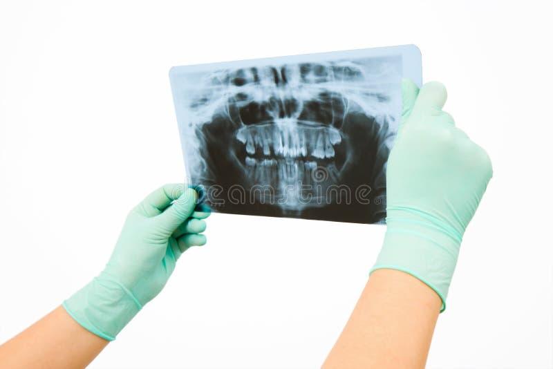 Radiologia immagine stock