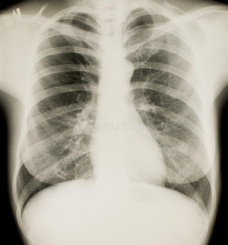 Radiologia, esame radiografico del torace fotografie stock libere da diritti