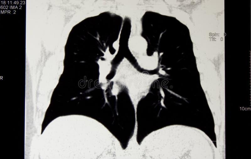 Radiologia, tomografia computata del corpo della cassa, MPR immagine stock