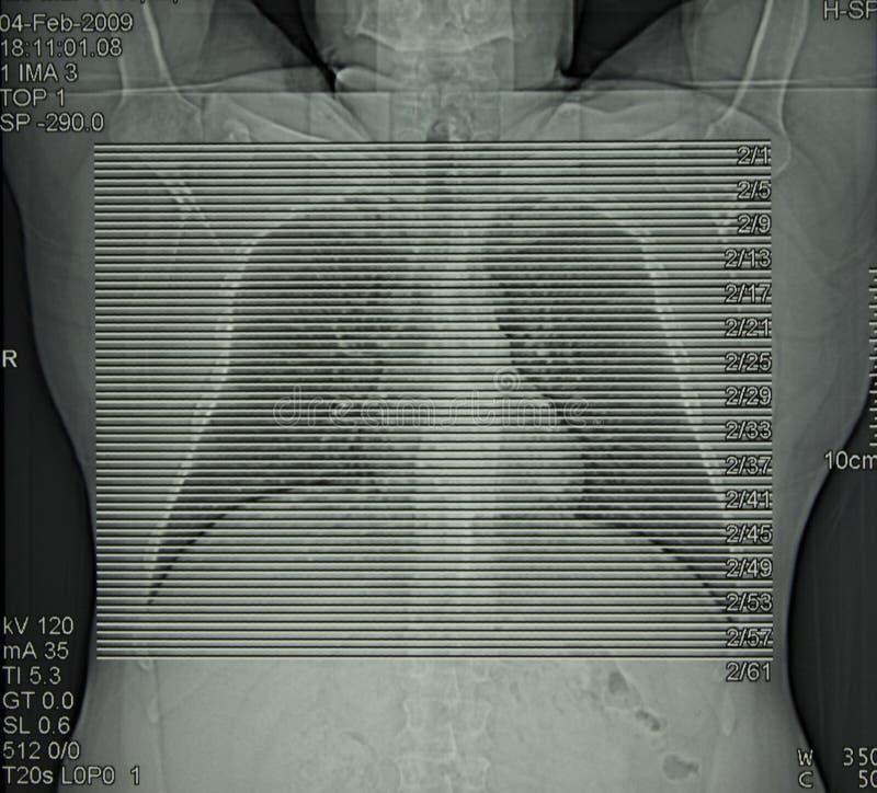 Radiologia, tomografia computata della cassa fotografia stock libera da diritti