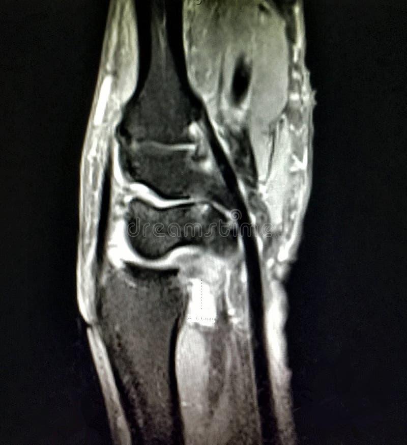 Radiological mri exam wrist anatomy pathology. There is MRI radiological exam of pathology of wrist , where distal radiolunar joint effusion with synovitis and stock photos