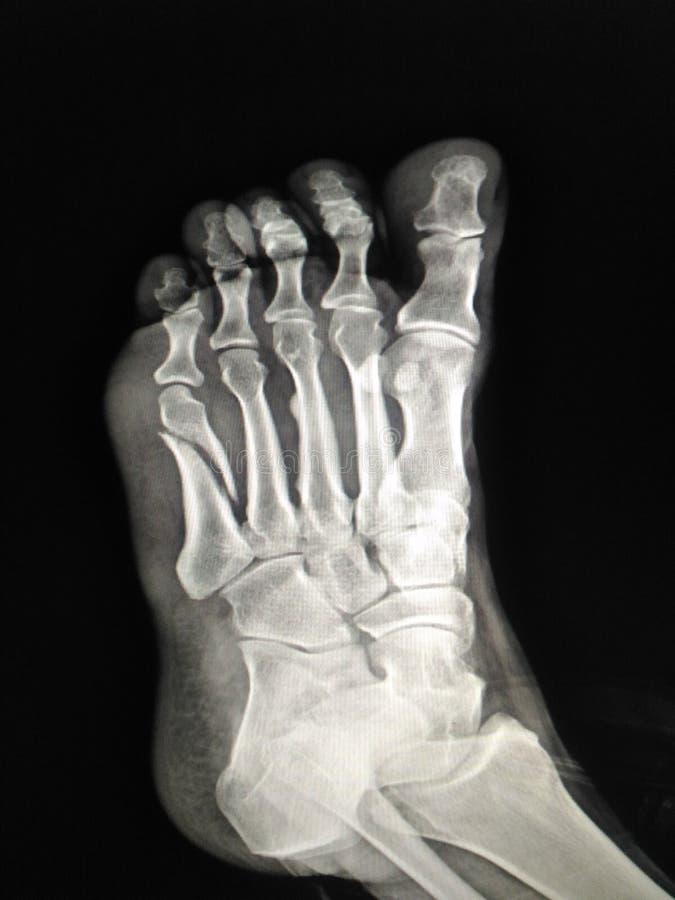 Radiologiczna stopa obrazy stock
