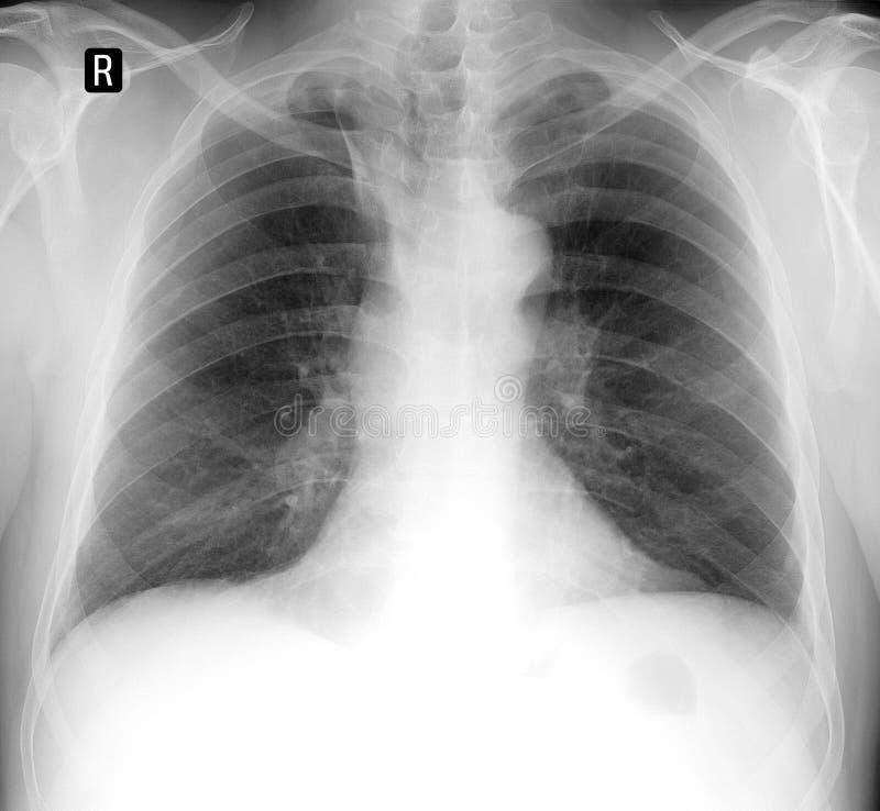 Radiologiczny płuco Dodatkowa część niesparowana żyła zdjęcia royalty free