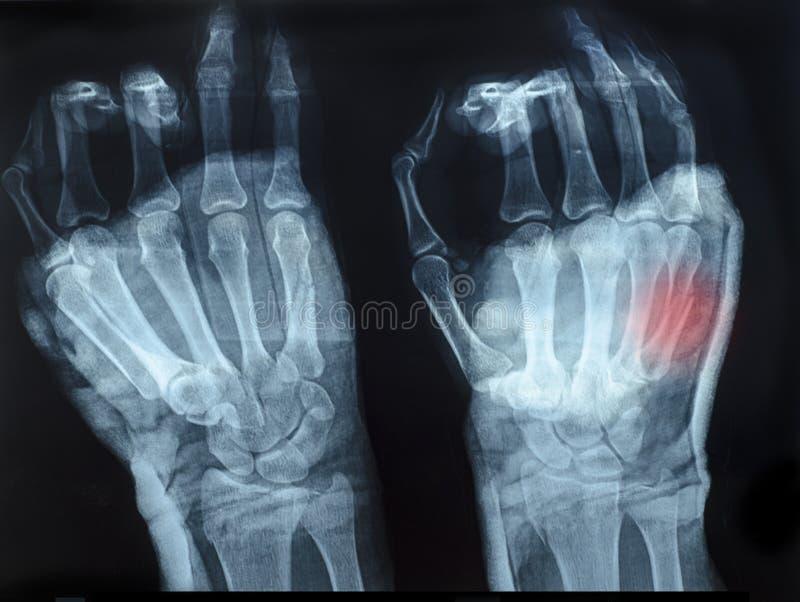 radiologiczny wizerunek ludzkie ręki z odgórną ręką pokazywać czerwień zdjęcia royalty free