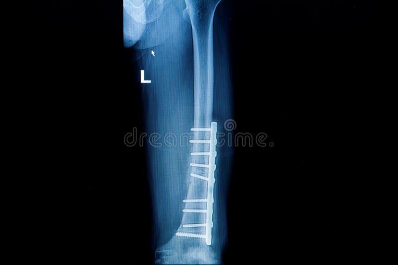 Download Radiologiczny Wizerunek Przełam Noga Z Wszczepu Scre I Talerzem (femur) Obraz Stock - Obraz złożonej z kolekcja, implode: 41954549