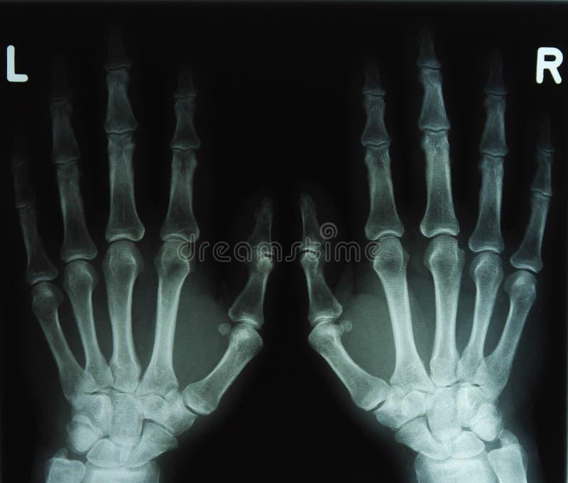 Radiologiczny wizerunek ręki fotografia royalty free