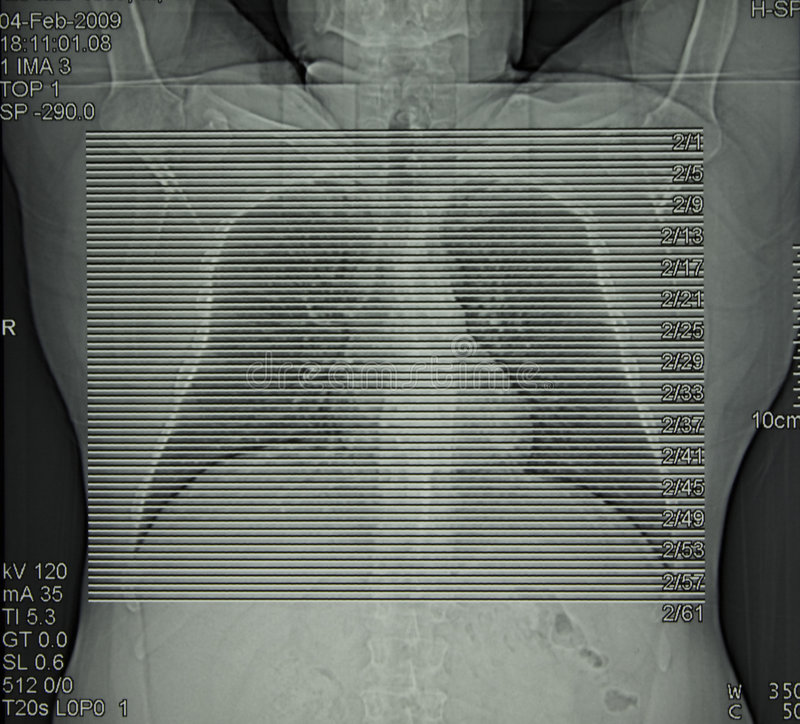 Radiologie, tomographie calculée de coffre photographie stock libre de droits