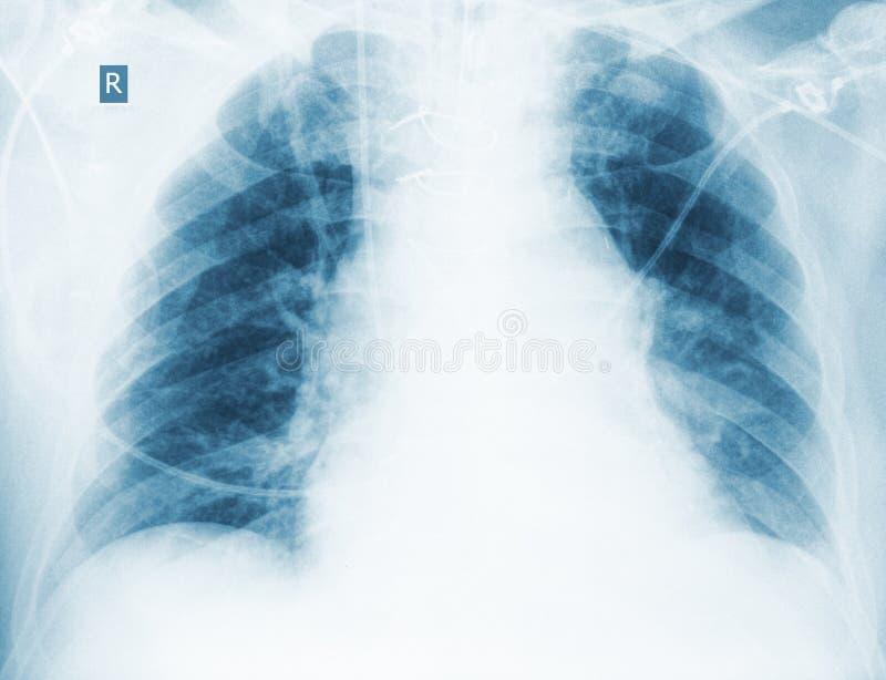 Radiologische Steuerung der hypostatic Pneumonie lizenzfreie stockfotografie