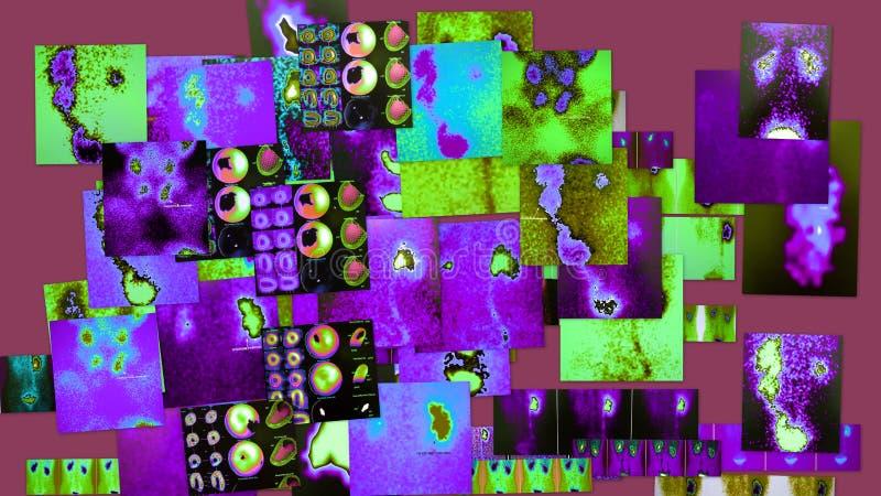 Radiologische violette kleuren kenmerkende collage stock illustratie
