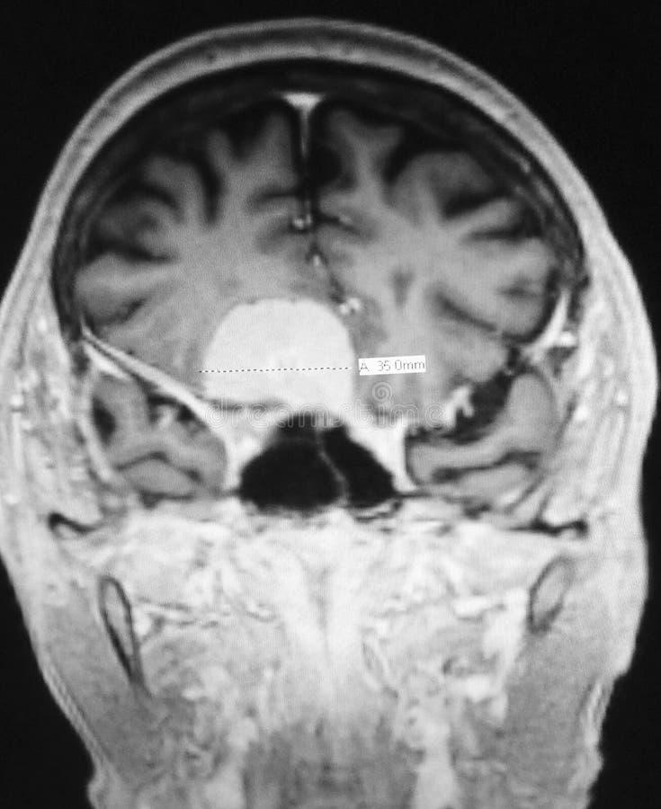 Radiologisk undersökning för Meningiomamribild fotografering för bildbyråer