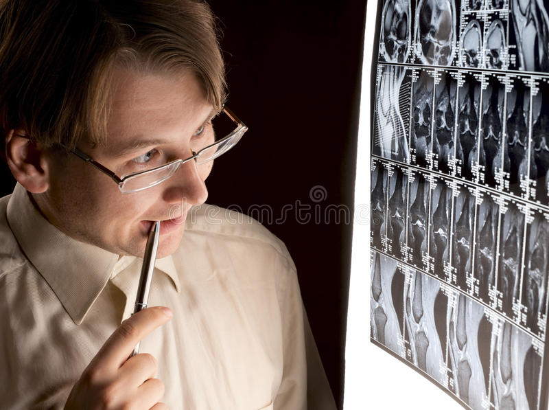 Radiologiste perplexe regardant MRI photos stock