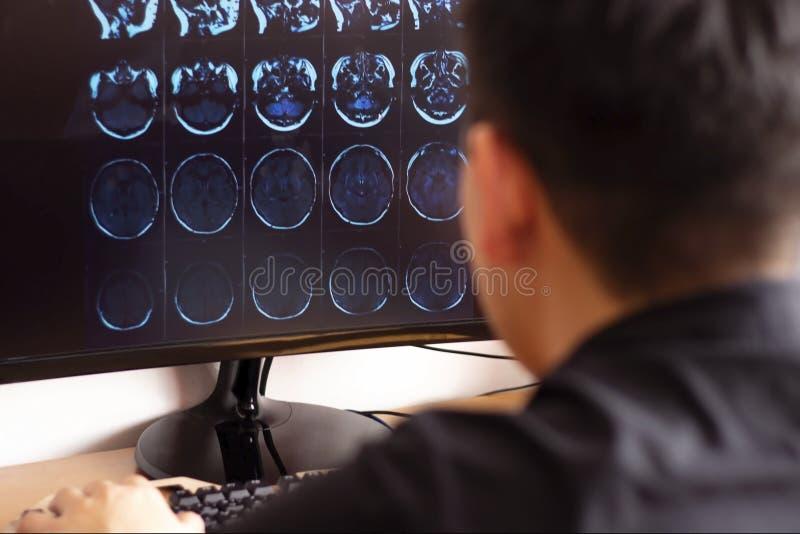 Radiologue de docteur dans l'hôpital regardant le balayage de rayon X de mri du balayage de ct de cerveau, de crâne et de tête su images stock