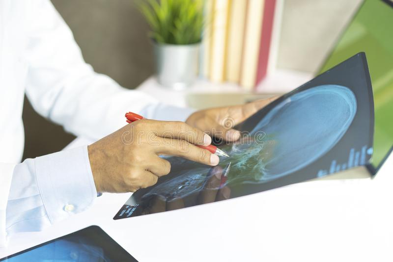 Radiology doctor examining at chest x ray film of patient at hospital royalty free stock photos
