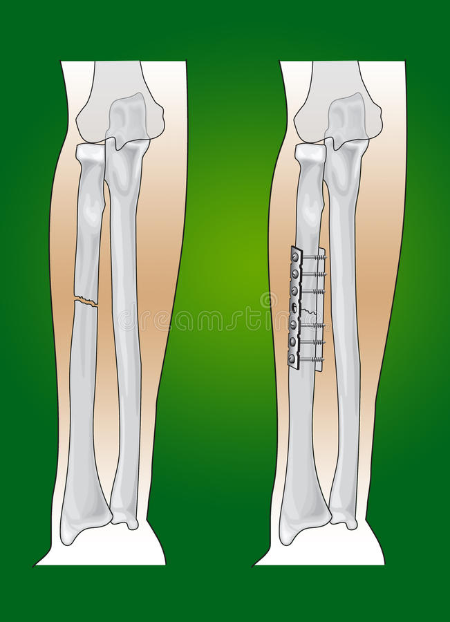 Radius Fracture Surgical Intervention Stock Photos