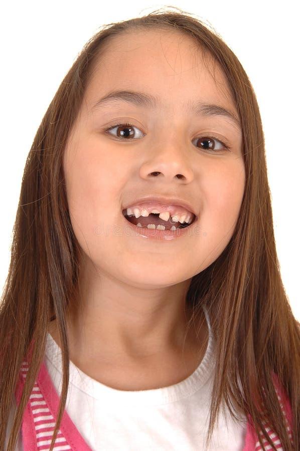 Ragazza che slaccia i suoi denti. fotografie stock