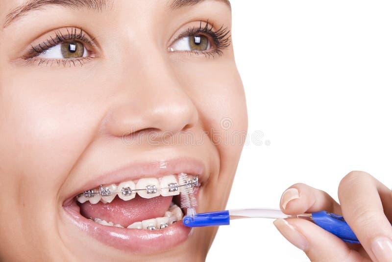 Ragazza con le parentesi graffe che puliscono i suoi denti fotografie stock