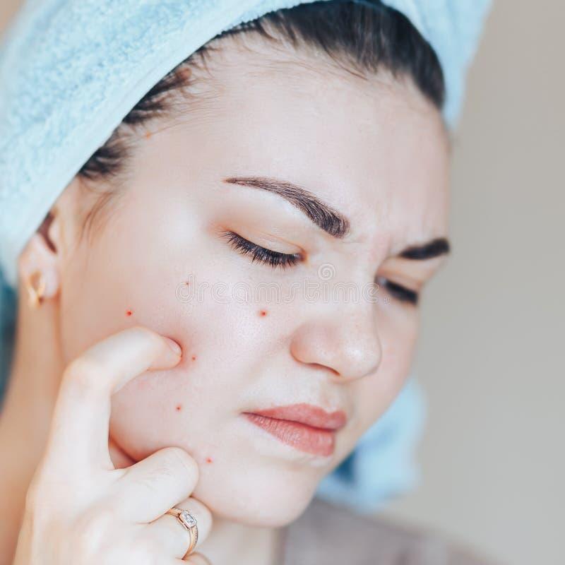 Ragazza graziosa con l'asciugamano sulla testa che schiaccia brufolo in asciugamano sulla sua testa immagine stock