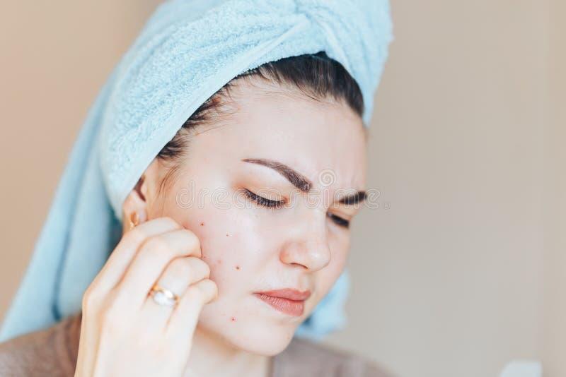Ragazza graziosa con l'asciugamano sulla testa che schiaccia brufolo in asciugamano sulla sua testa fotografia stock