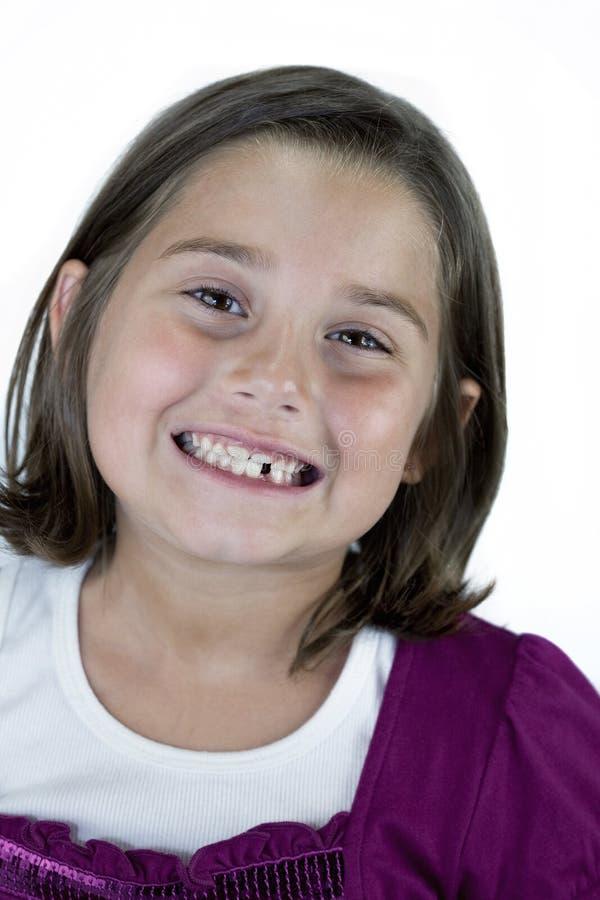 Ragazza sorridente con il dente mancante immagine stock