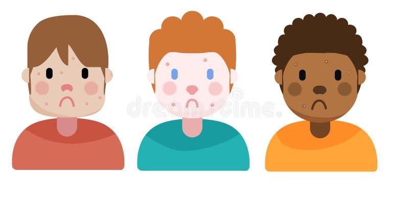 Ragazzi con acne, illustrazione illustrazione di stock