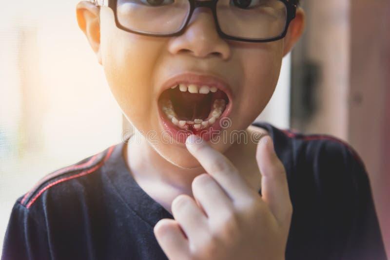ragazzo asiatico del yound che allenta il dente di latte fotografia stock libera da diritti