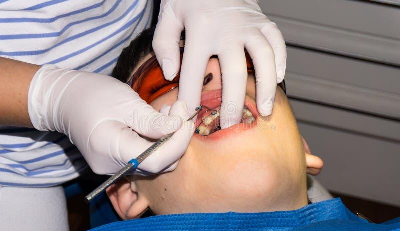 Ragazzo autistico nel trattamento dentario sostegno Ritardi e braccia immagini stock libere da diritti