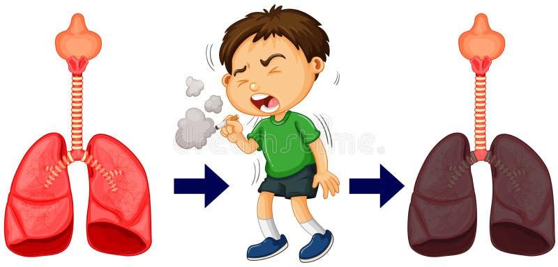 Ragazzo che fuma e cancro polmonare illustrazione vettoriale