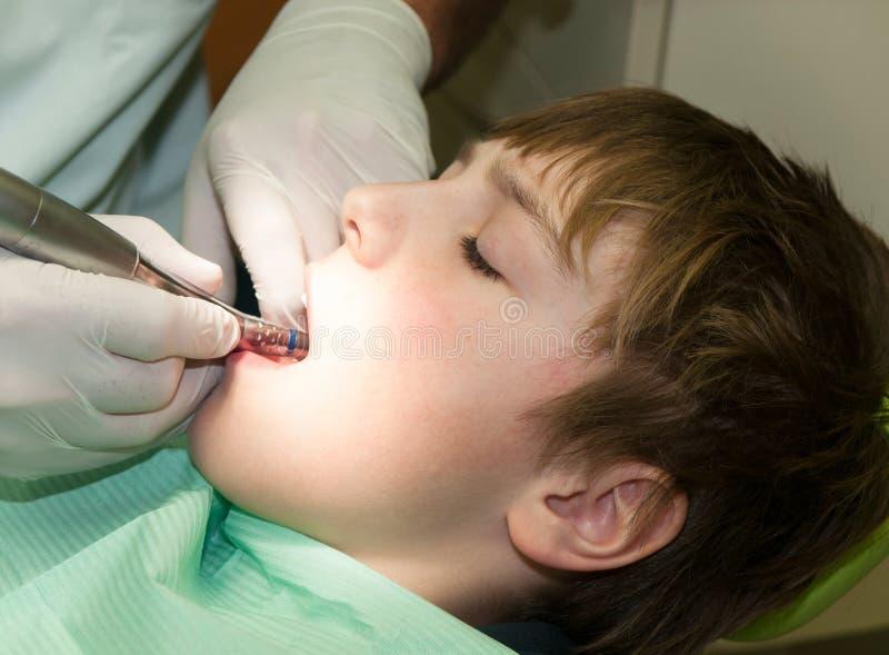 Ragazzo nel trattamento dentario fotografie stock