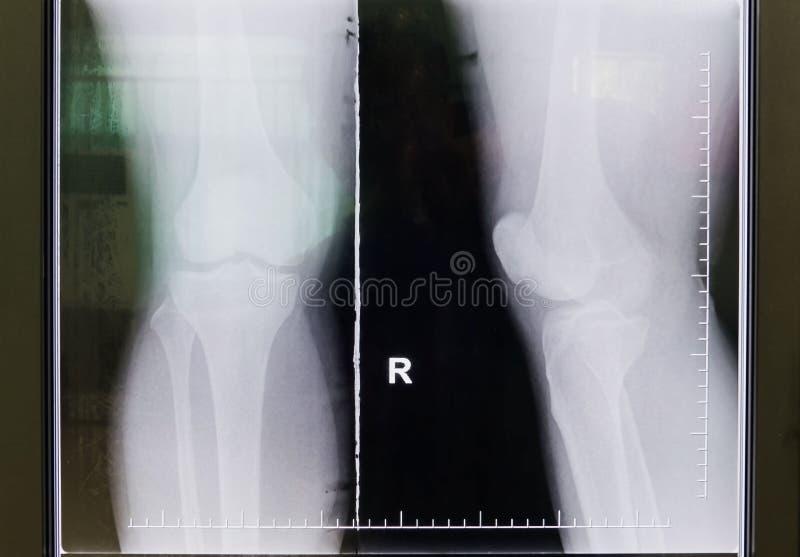 Raggi x in bianco e nero del film del ginocchio fotografia stock