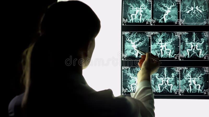 Raggi x d'esame dei vasi sanguigni del neurochirurgo, facenti diagnosi, trattamento paziente immagine stock
