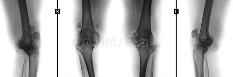 Raggi x dei giunti di ginocchio Deformare artrosi Negativo fotografia stock