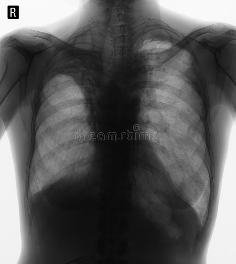 Raggi x dei polmoni: Pneumofibrosis di Postradiation Negativo fotografie stock libere da diritti