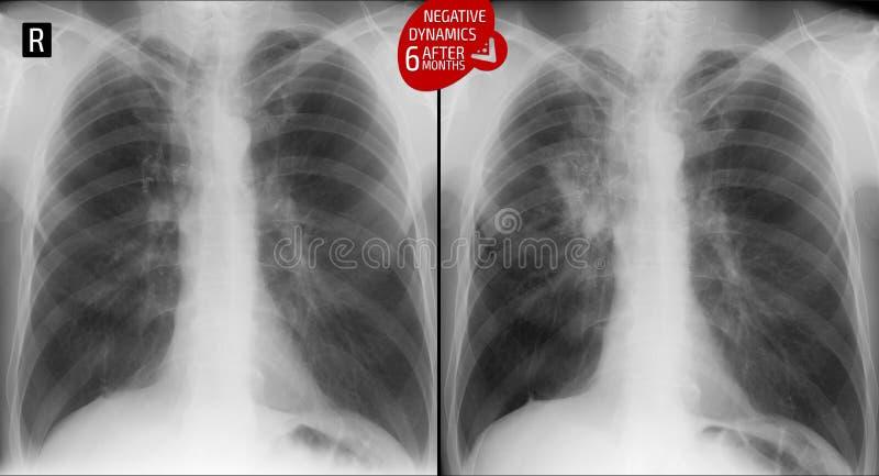 Raggi x dei polmoni: Polmone azionato Tubercolosi di incremento dei polmoni dopo 6 mesi Negativo fotografie stock libere da diritti