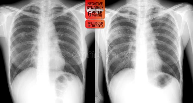 Raggi x dei polmoni: Tubercolosi di incremento dei polmoni dopo 6 mesi fotografia stock