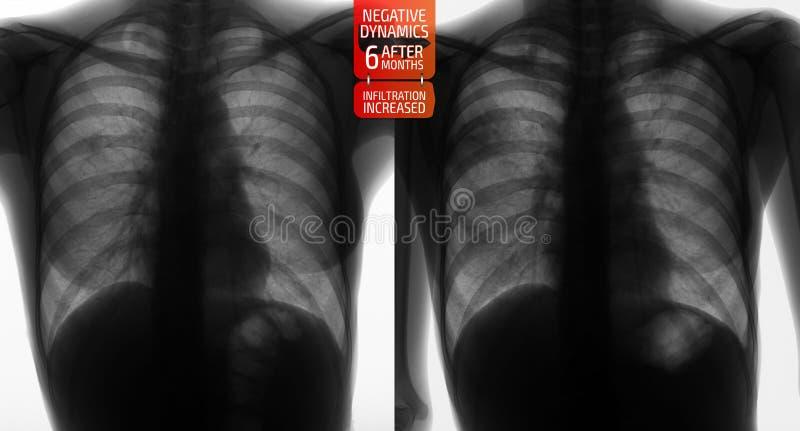 Raggi x dei polmoni: Tubercolosi di incremento dei polmoni dopo 6 mesi Negativo fotografia stock libera da diritti