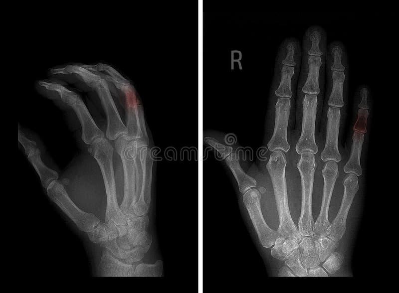 Raggi x del chondroma della falange media del quinto dito della mano sinistra Patologia in indicatore rosso immagine stock libera da diritti